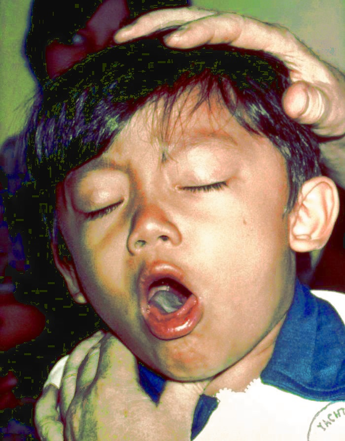 Cough - Homeopathy treatment